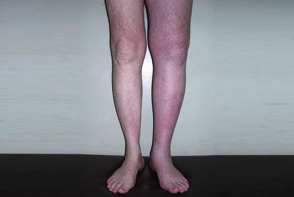 глубокий венозный тромбоз